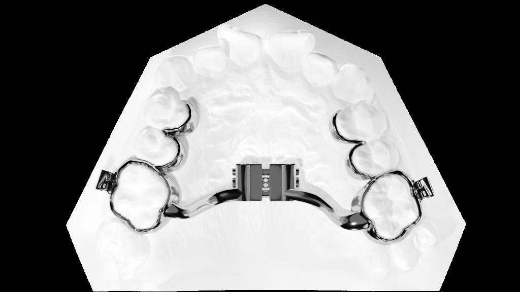 TADMAN Hyrax Tooth Borne Aufsicht